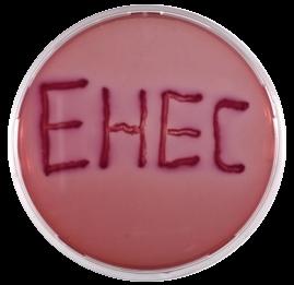 projects/ehec/bild-ehec-2.png
